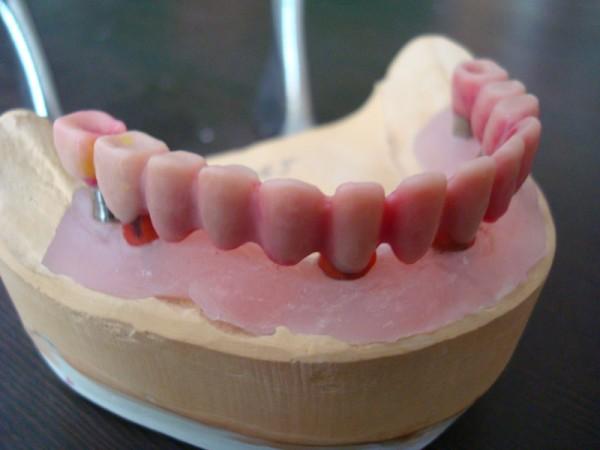 Зубы из металлокерамики