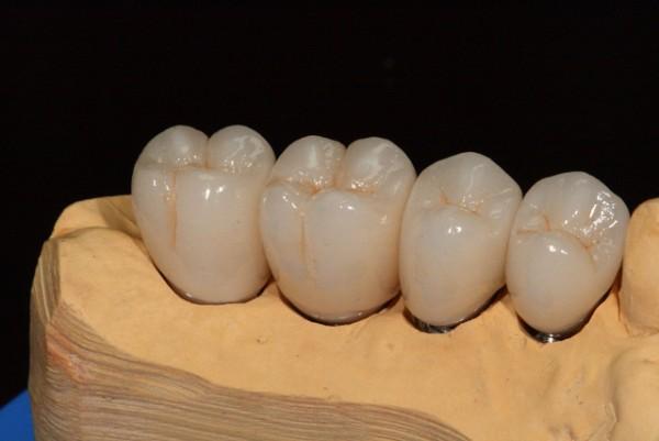 Зубы из циркония