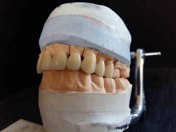 <!DOCTYPE html> <html> <head> </head> <body> <p>Керамика на основе диоксида циркония</p> </body> </html>