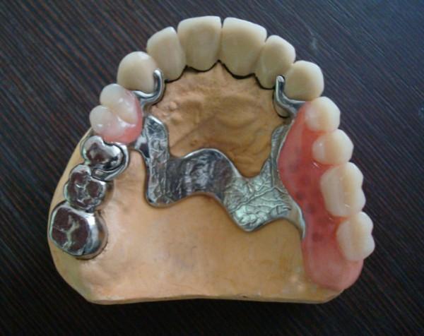 Бюгельное протезирование зубов фото