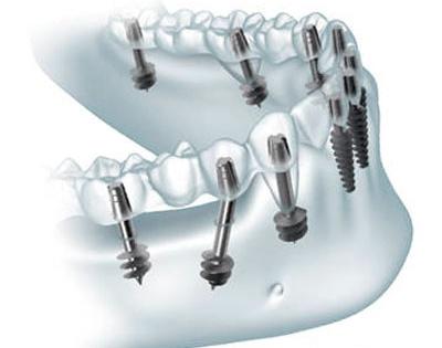 Базальная имплантация зубов фото