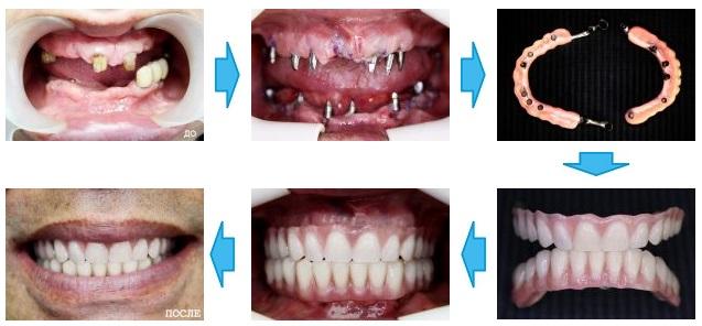 базальная имплантация до и после