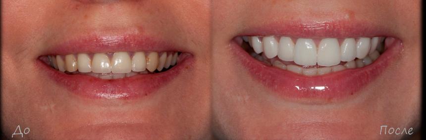 Коронка на передний зуб минусы