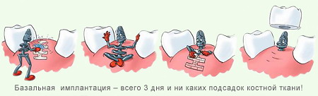базальная имплантация в киеве