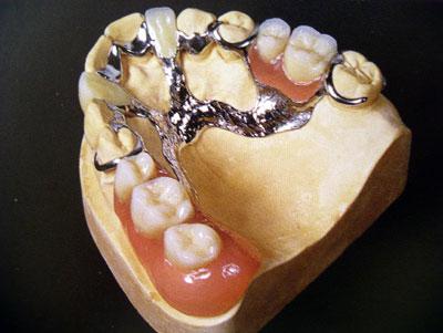 зубной техник обучение харьков