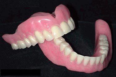 neylonovie-zubnye-protezy-1.jpg