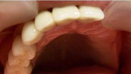 зубные протезы нейлоновые
