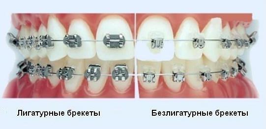 врач ортодонт