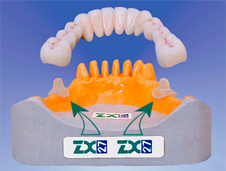 glass abutment system zx 27