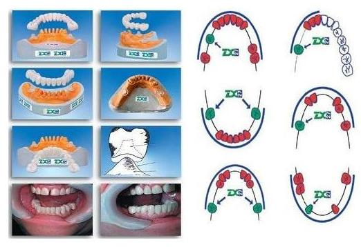 glass abutment system