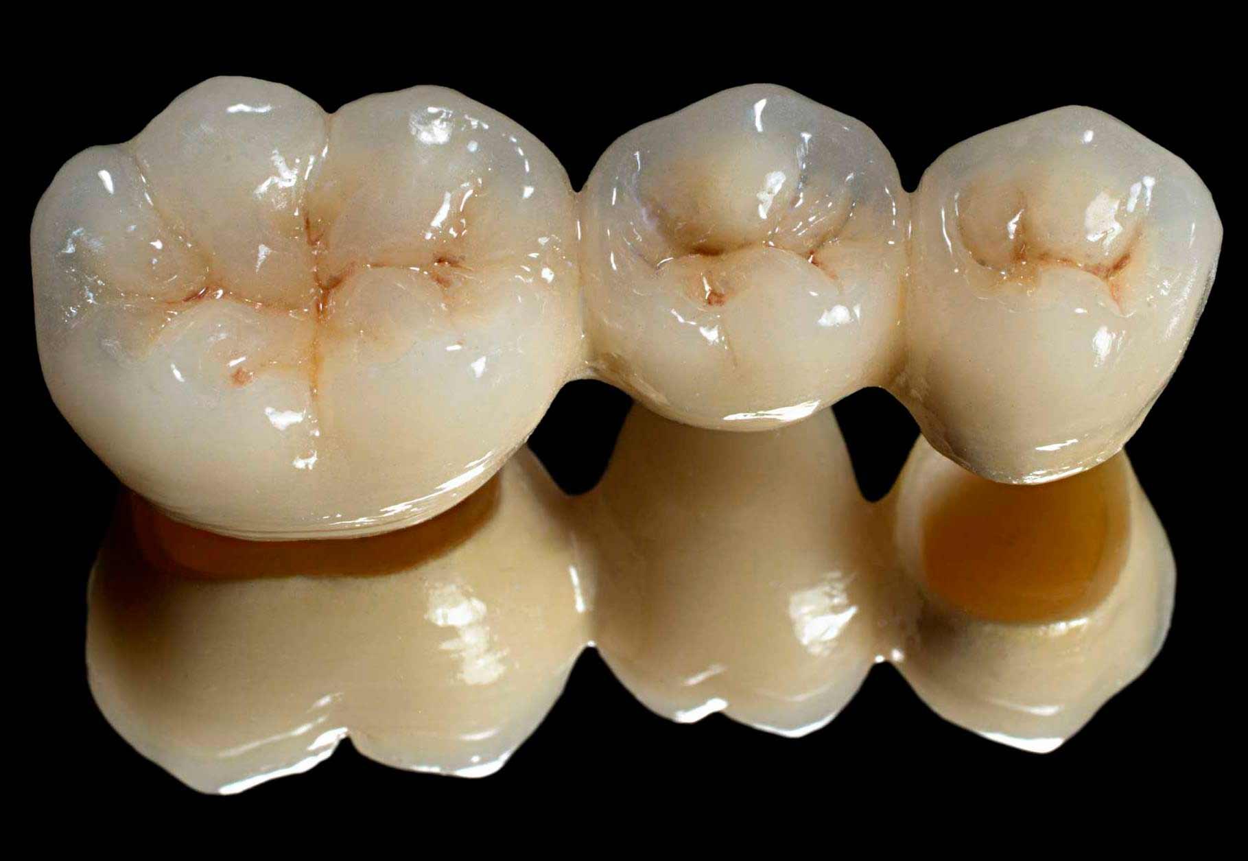 съемные виниры на зубы купить в новосибирске