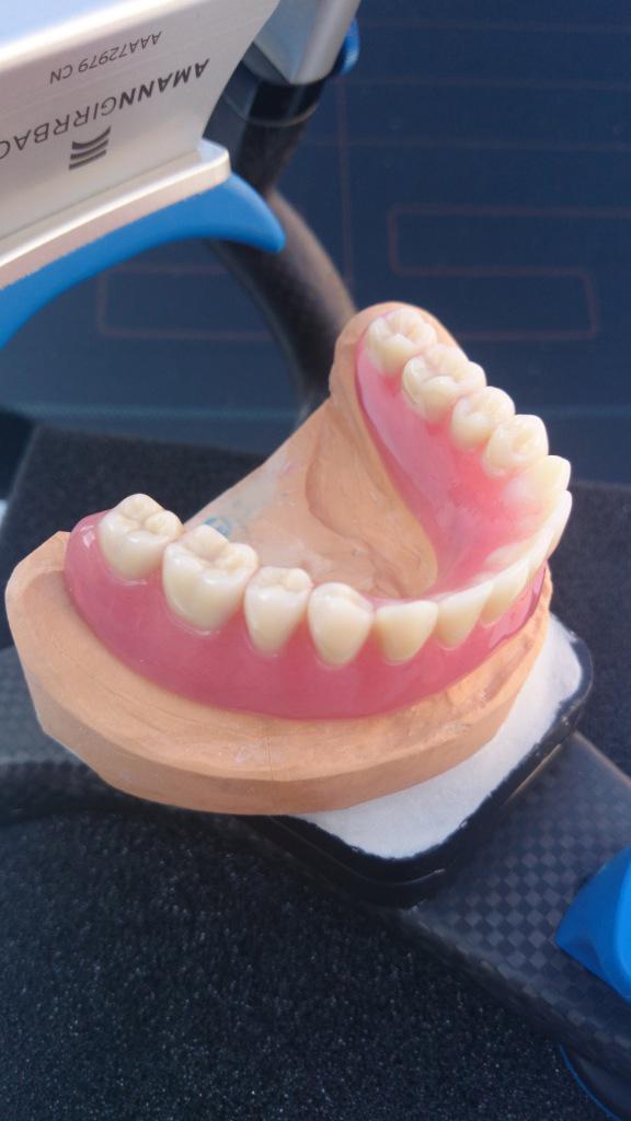 Поставить съемные зубные протезы цены