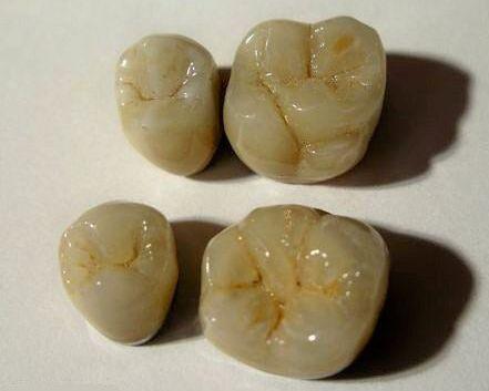 зубные виниры заказать в омске