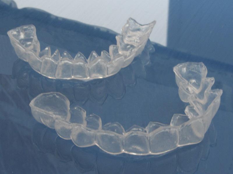 каппа для отбеливания зубов