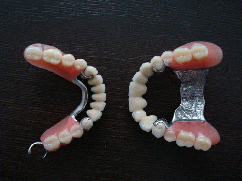 виниры для зубов википедия