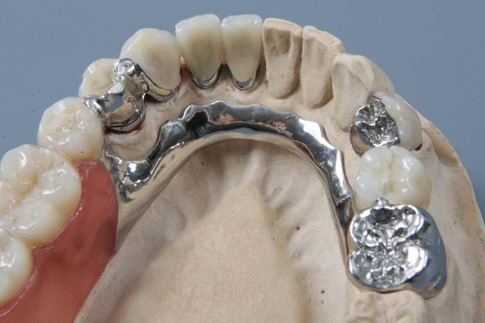 Зубной протез ремонт своими руками фото